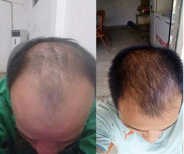 Dầu gội ngăn rụng tóc, dầu gội trị rụng tóc, dầu gội kích thích mọc tóc 2