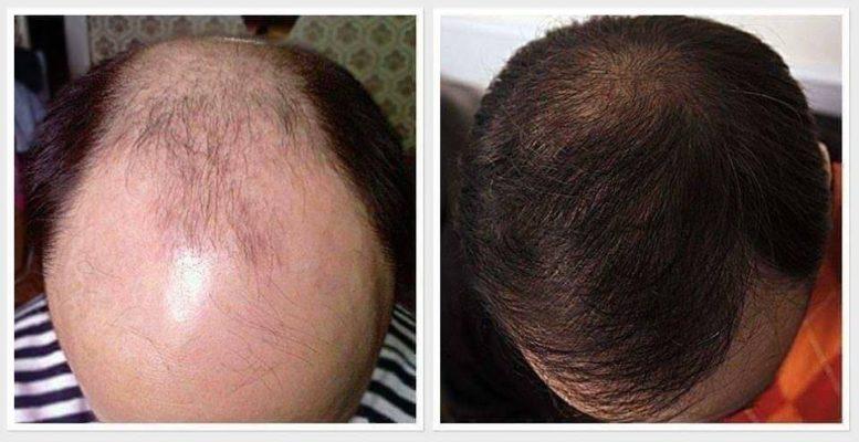Dầu gội ngăn rụng tóc, dầu gội trị rụng tóc, dầu gội kích thích mọc tóc 3