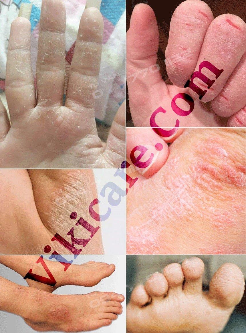 thuốc trị viêm da cơ địa - thuốc trị chàm - thuốc trị vẩy nến 122