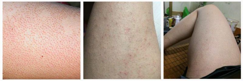cách trị viêm nang lông - cách trị viêm lỗ chân lông