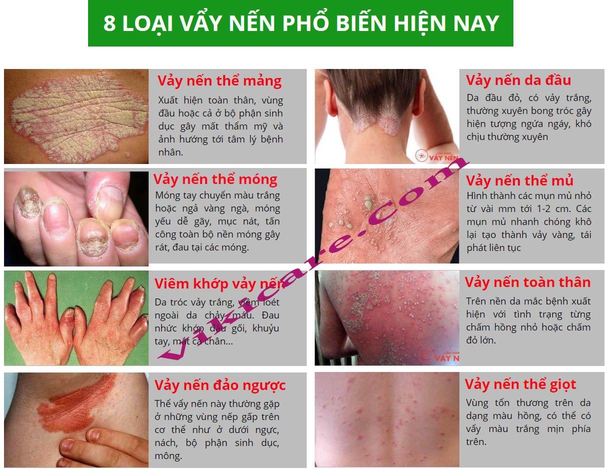 các loại vẩy nến và cách trị vảy nến da đầu - thuốc trị vảy nến da đầu